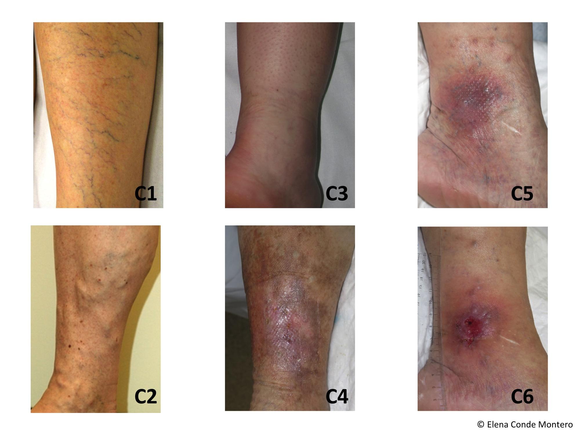 eczema varicoso definicion