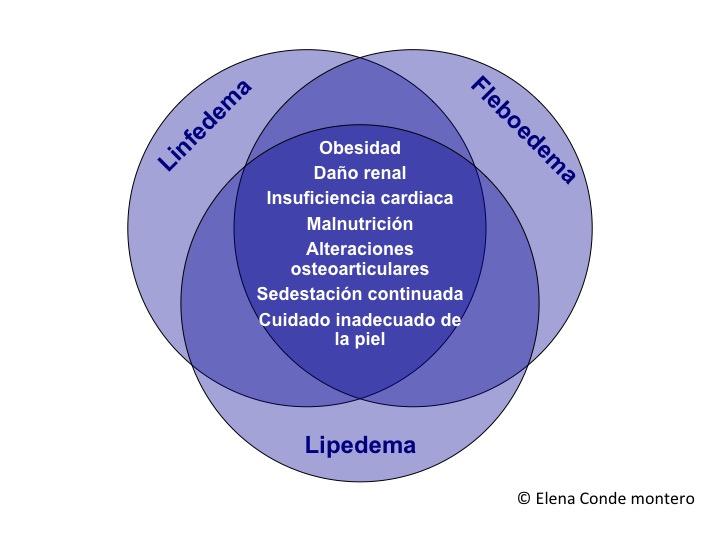 linfedema epidema fleboedema